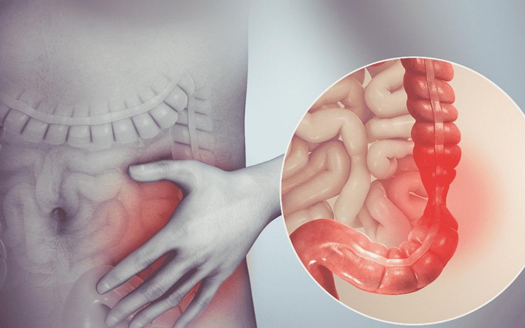 Le thé vert peut-il traiter le SCI ? (syndrome du colon irritable)